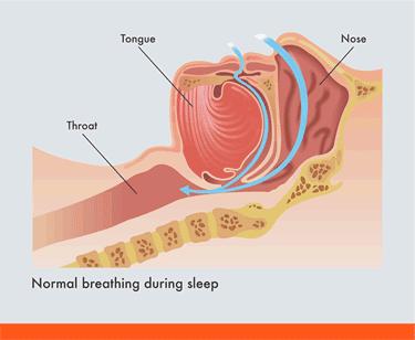 Normal breathing during sleep