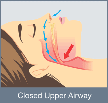 Closed upper airway